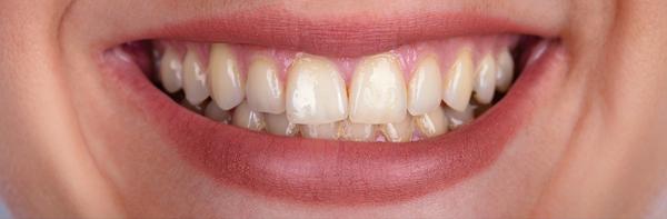 Zahnfarbe häufigste Patientenfrage: Zahnfarbe